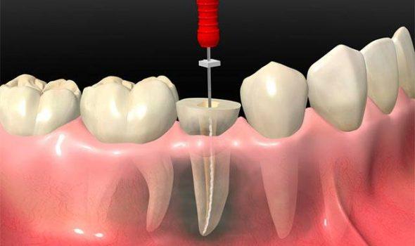 imagem da clínica odontológica de endodontia madrid
