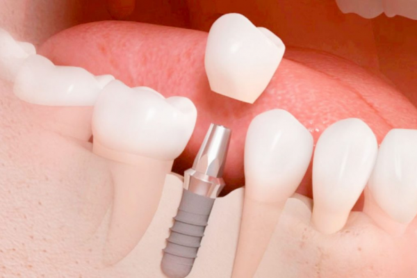 implantes dentales clinica moratalaz