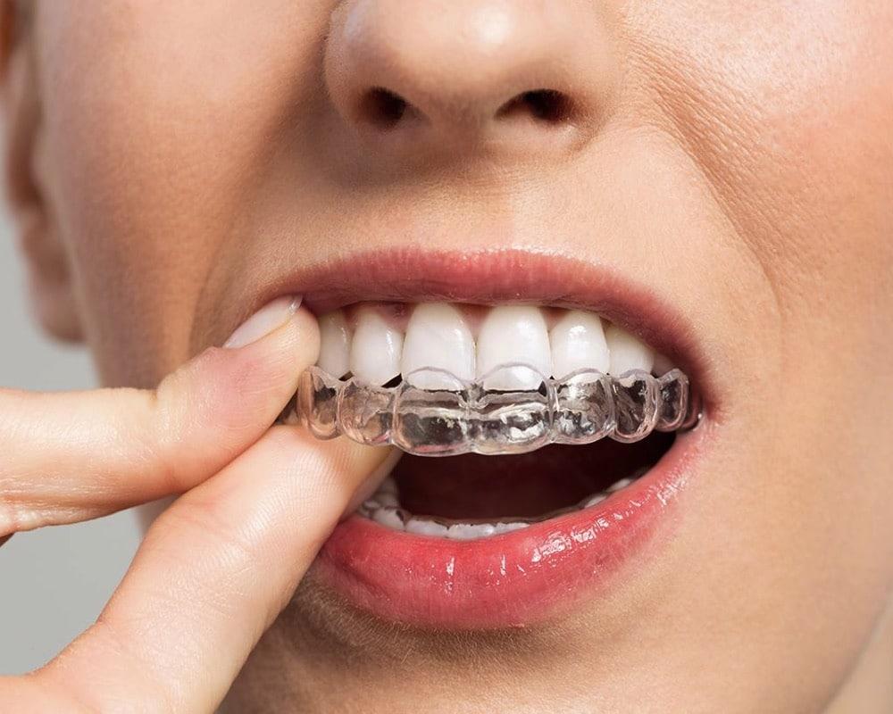 imagen de ortodoncia invisible invisalign madrid