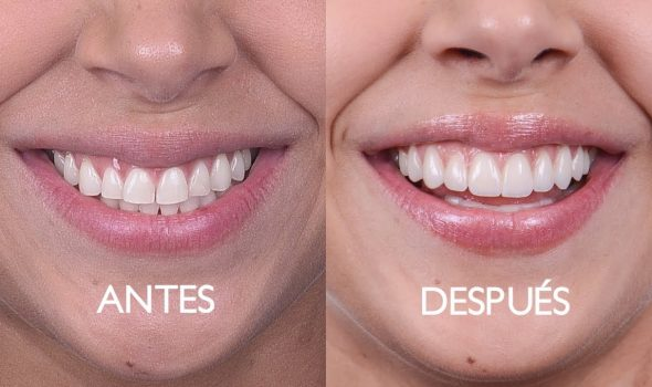 imagem de facetas dentais clínica odontológica moratalaz