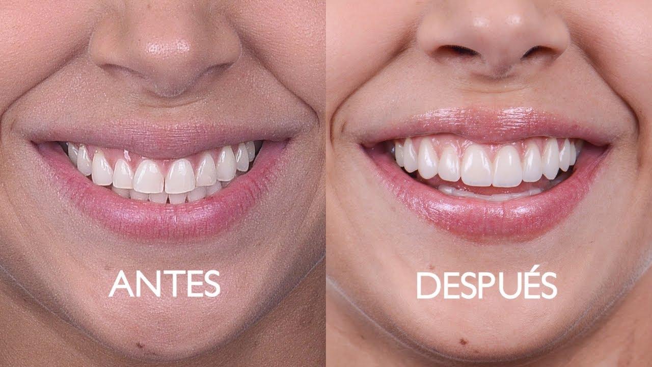 image de placages dentaires clinique dentaire moratalaz