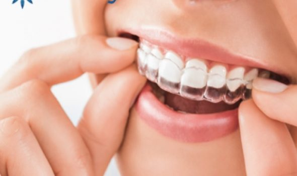 Tratamento Invisalign Image Clinica Dental Madrid