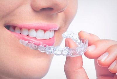 imagen de ortodoncia invisible madrid