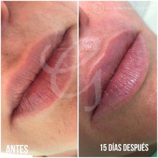 Imagen antes y después Ácido Hialurónico Clínica Moratalaz 66