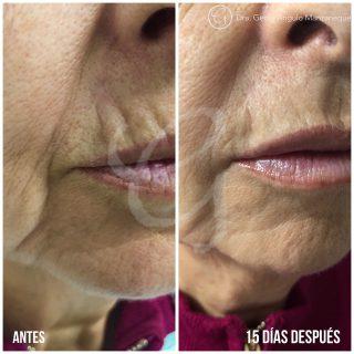 imagen de Imagen antes y después Ácido Hialurónico Clínica Moratalaz 66