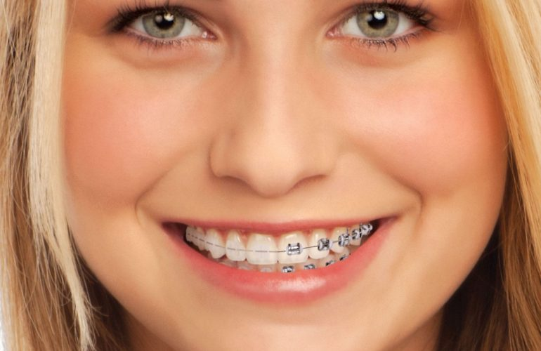 imagem de brackets-ceramic-orthodontics-clinica-dental-madrid