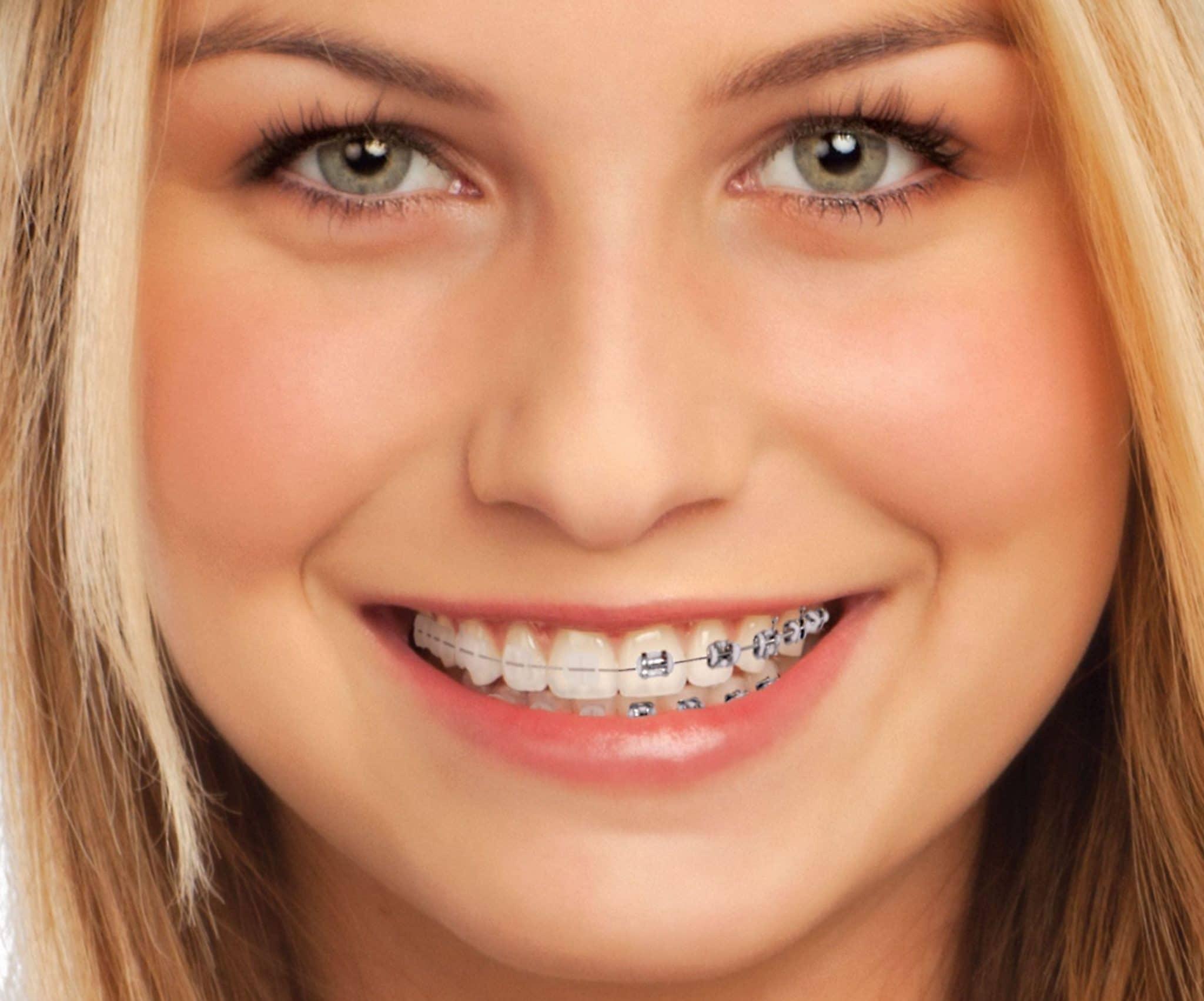 image de brackets-céramique-orthodontie-clinica-dentaire-madrid